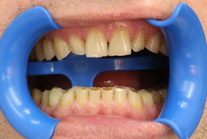 Лечение зубов в Петербурге