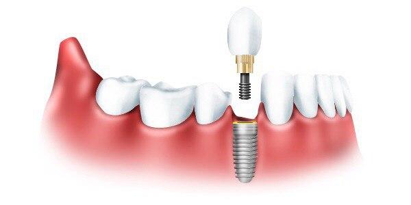 Отзывы об имплантации зубов в Санкт-Петербурге