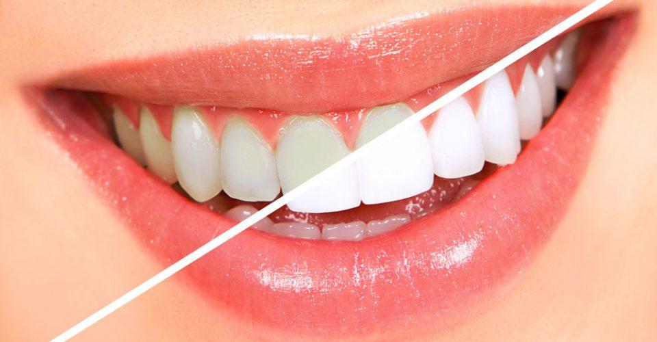 Процедура отбеливания зубов