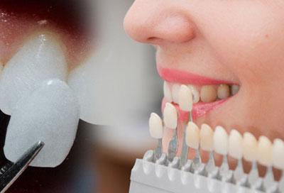 виниры на зубы цена в москве отзывы