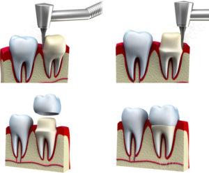 Как обтачивают зуб под коронку